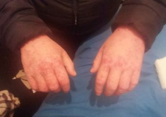Woman claims she's found 'miracle cure' for severe eczema that left her housebound and screaming in pain