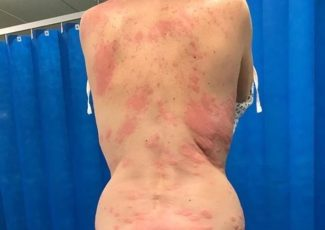 Mum covered in horrific burning rash 'after vaping for the first time' – Mirror Online