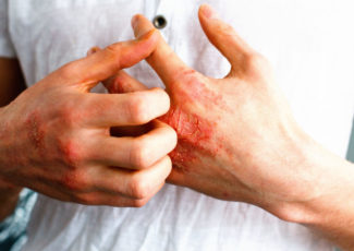 How CBD products can treat eczema and dry skin. – CBD Testers