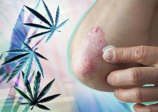Can CBD Relieve Psoriasis Symptoms? Here's What Doctors Are Saying – Yahoo Lifestyle