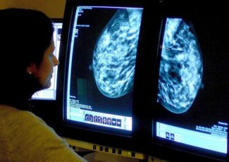 'New hope' for young women with incurable breast cancer as drug increases three-year survival by 50% – The Independent